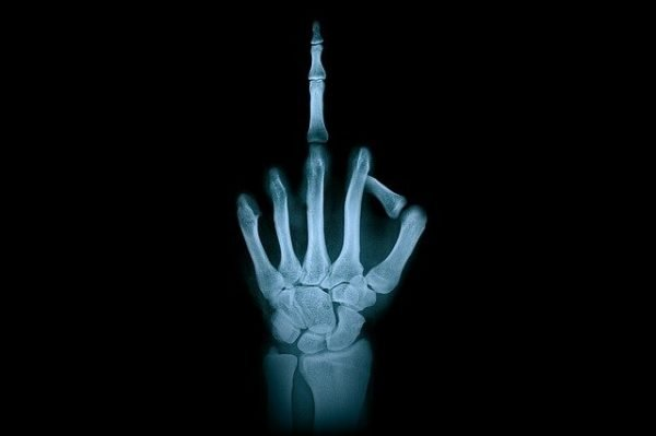 Flipping the middle finger x-ray.